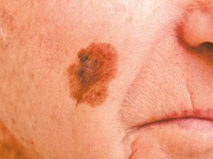 lentigo skin problem